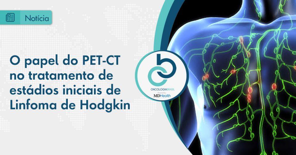 Um desafio para a radioterapia no tratamento do Linfoma de Hodgkin